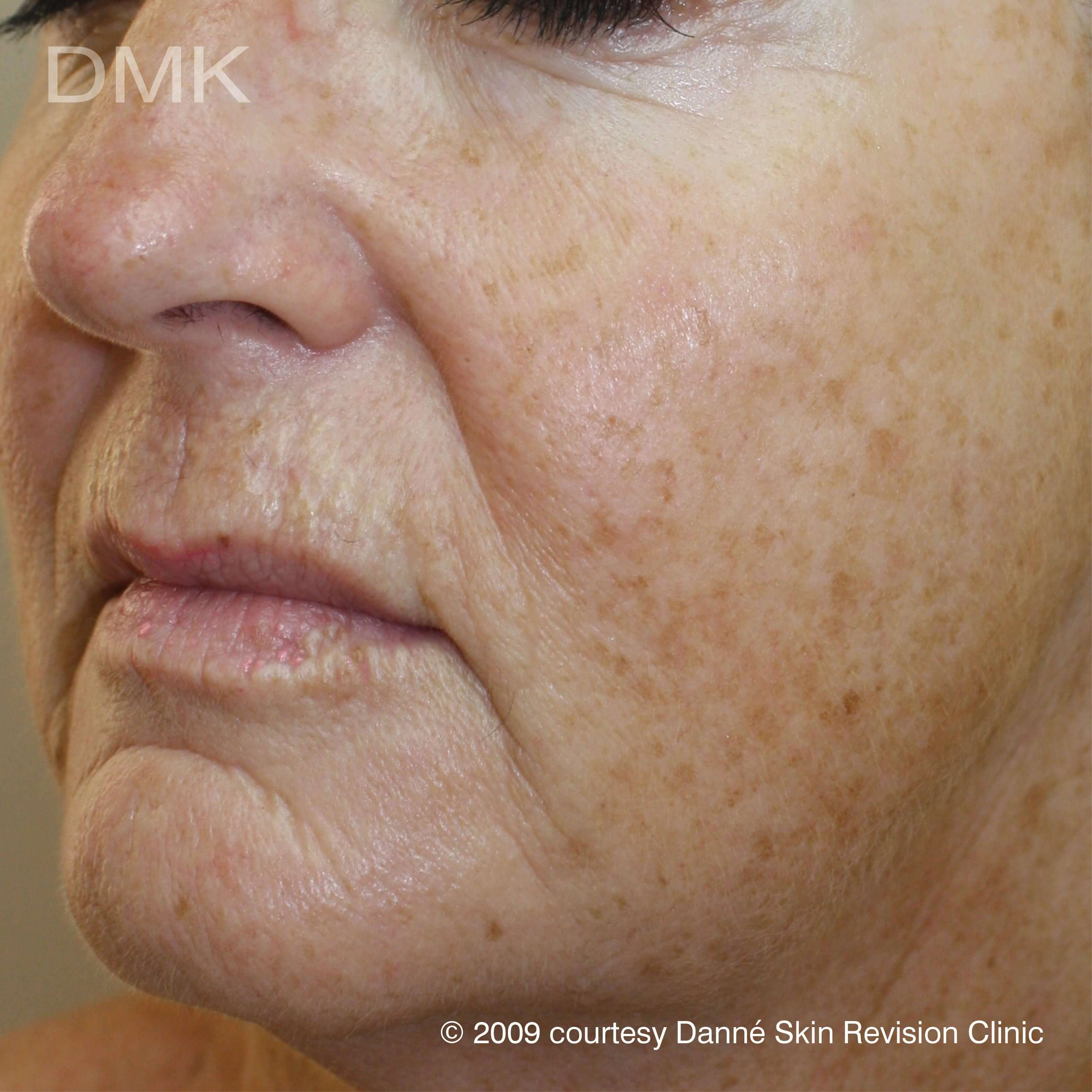 Before-agepigmentation-1