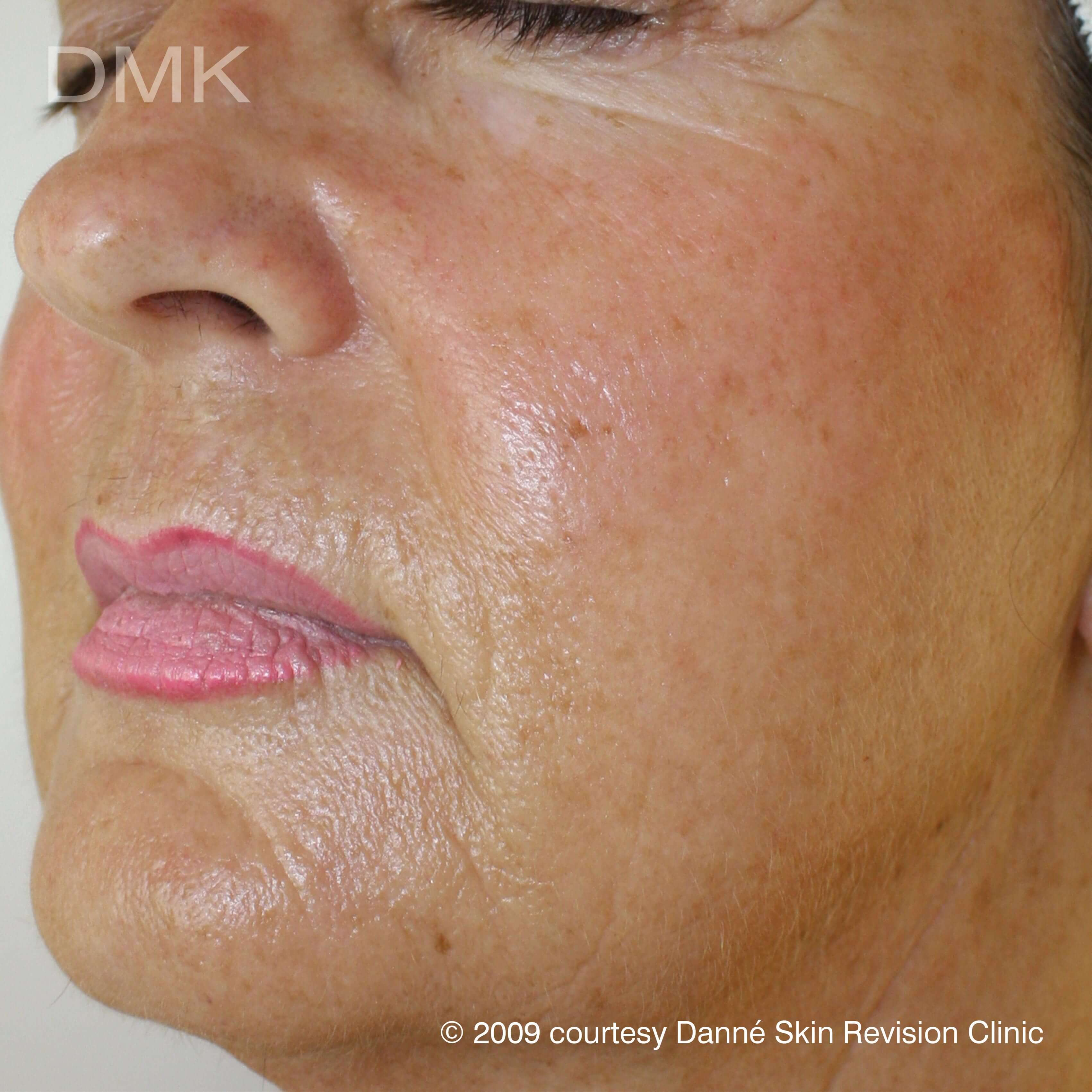 After-agepigmentation-1