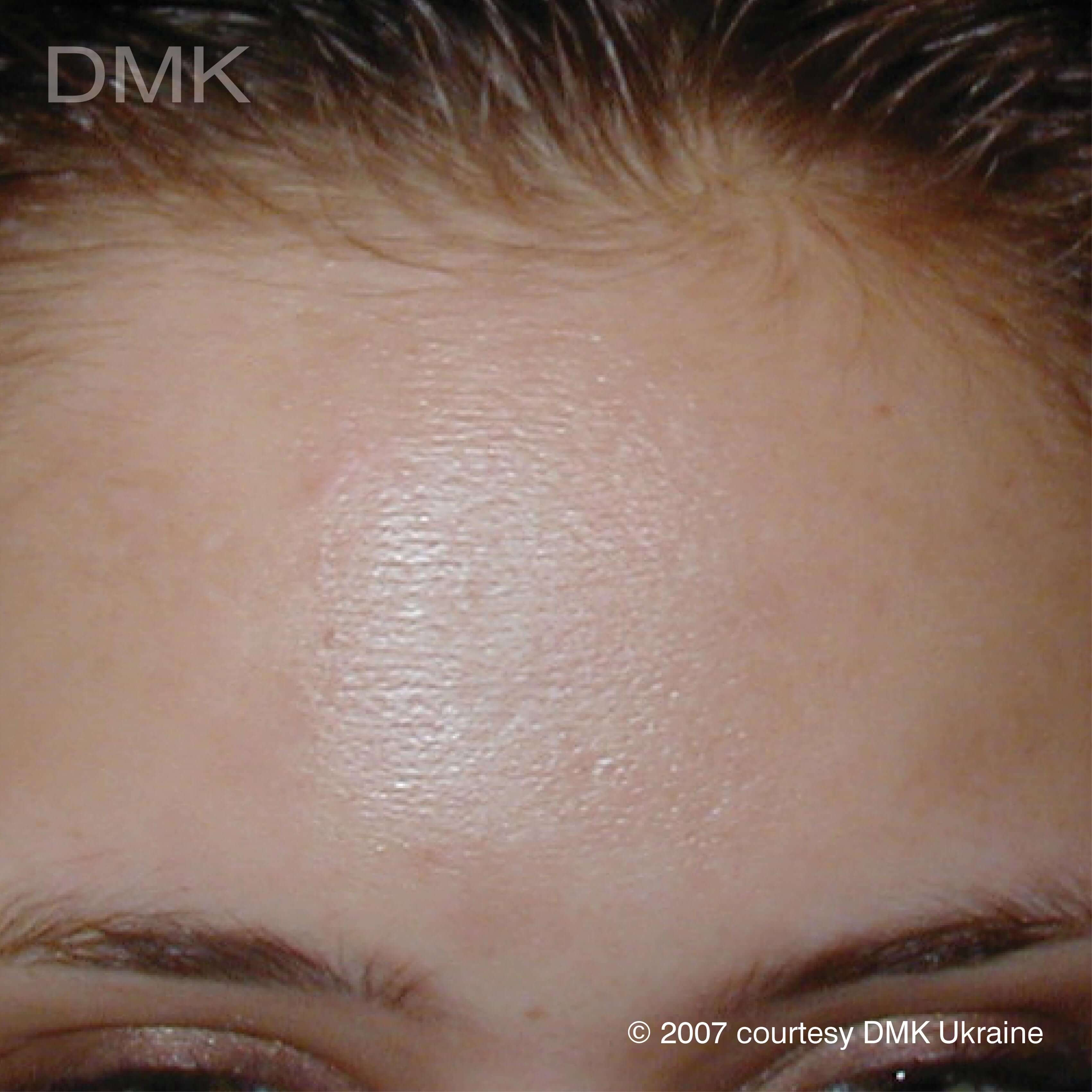 After-Acne Forehead