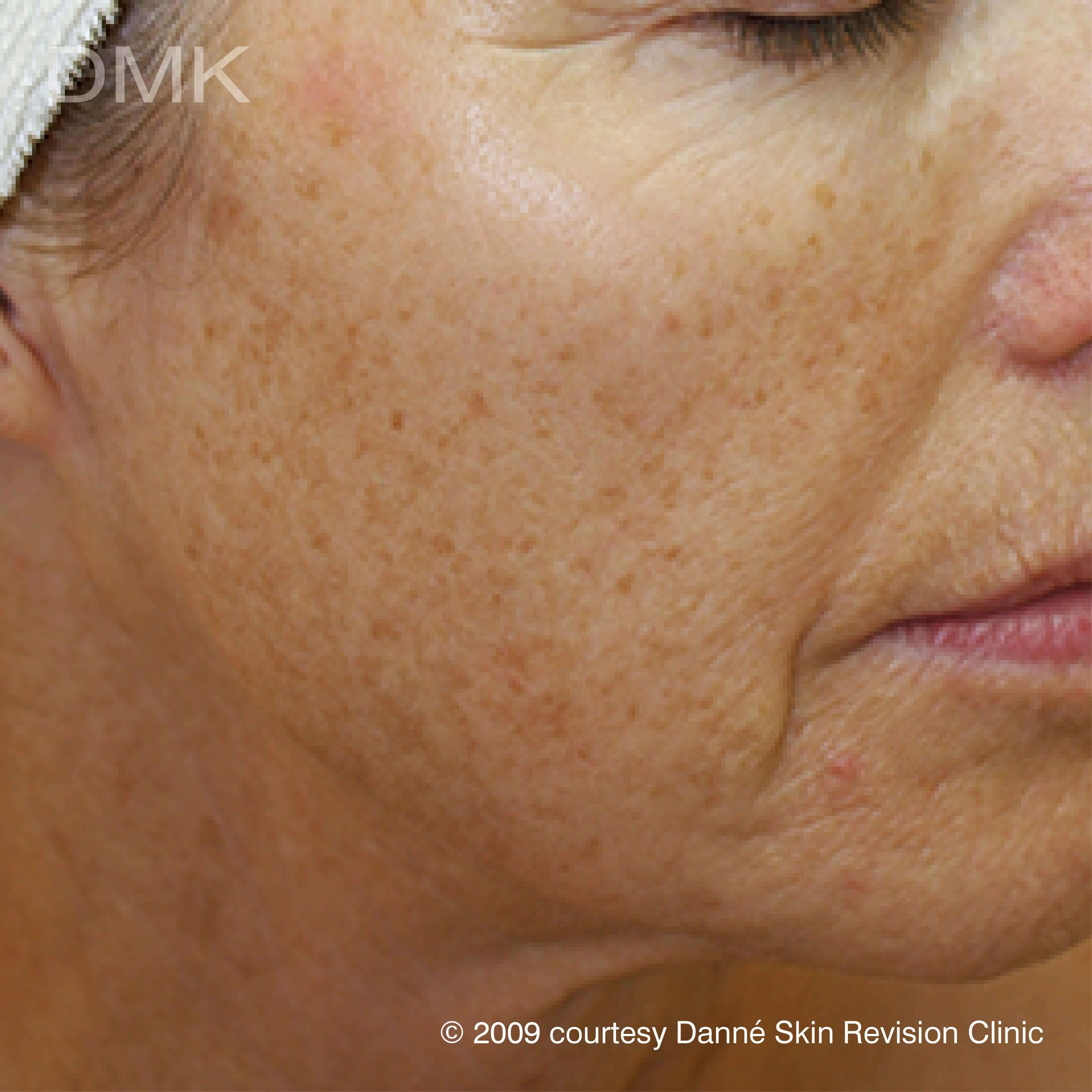 Before-agepigmentation-2